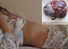 Девочка 8 лет со злокачественной опухолью яичника (в правом верхнем поле кадра - внешний вид удаленной опухоли).
